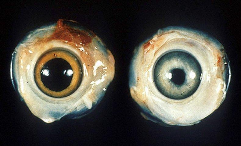 Слева - нормальный куриный глаз. Справа - глаз курицы больной болезнью Марека