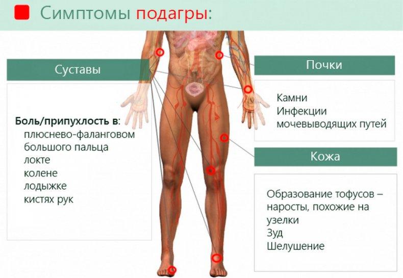 Лечение дисплазии тазобедренных суставов в год