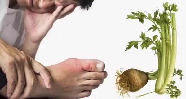 Сельдерей при подагре несет пользу или вред - свойства продукта